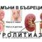Съвременни подходи  при диагностициране и лечение на уролитиаза при деца